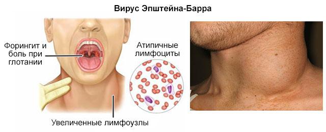 проявления вируса Эпштейна-Барра