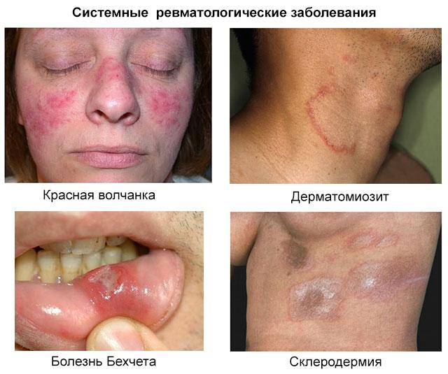 системные ревматологические заболевания – красная волчанка, дерматомиозит, болезнь Бехчета, склеродермия