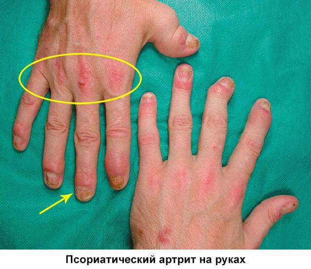 внешний вид кистей, пораженных псориатическим артритом