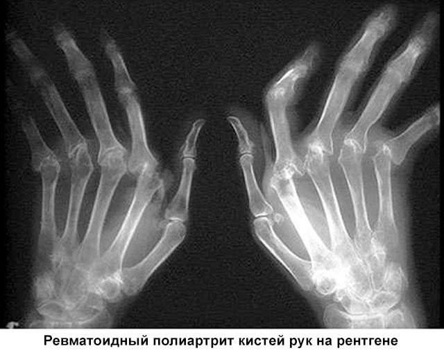 ревматоидный полиартрит кистей рук на рентгене