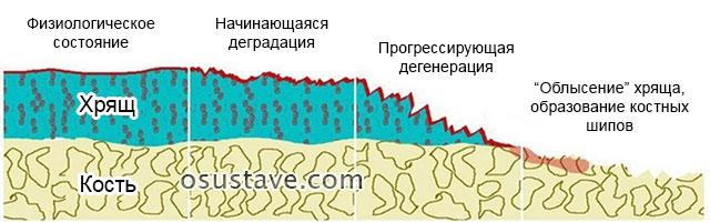 Хондропротекторы с гиалуроновой кислотой для суставов