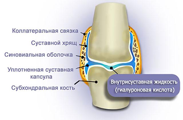 гиалуроновая кислота в капсуле сустава