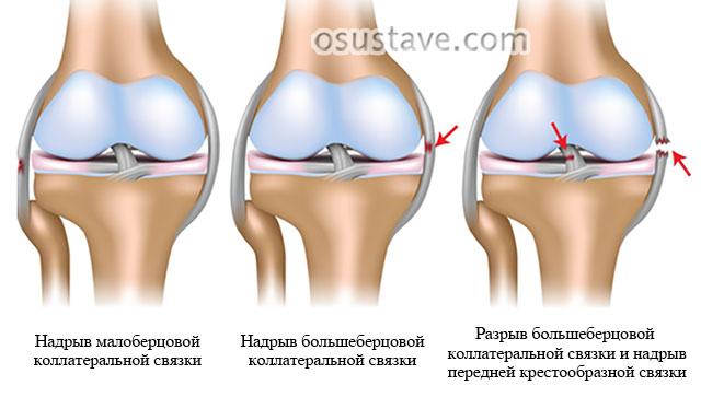 повреждения разных связок коленного сустава