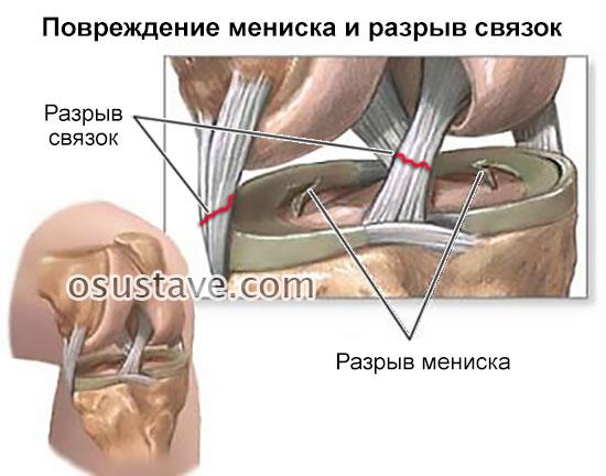 повреждение мениска и разрыв связок