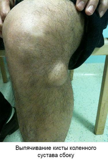 выпячивание кисты сбоку колена