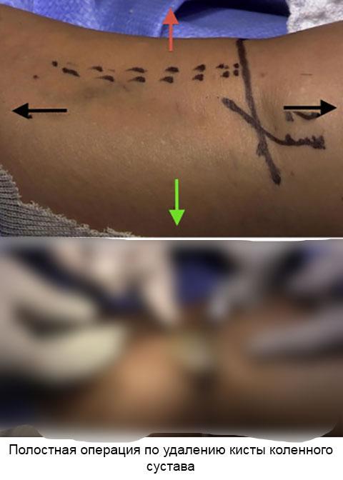 полостная операция по удалению кисты коленного сустава