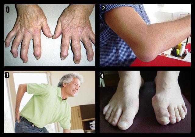 заболевания, при которых показаны компрессы с Димексидом