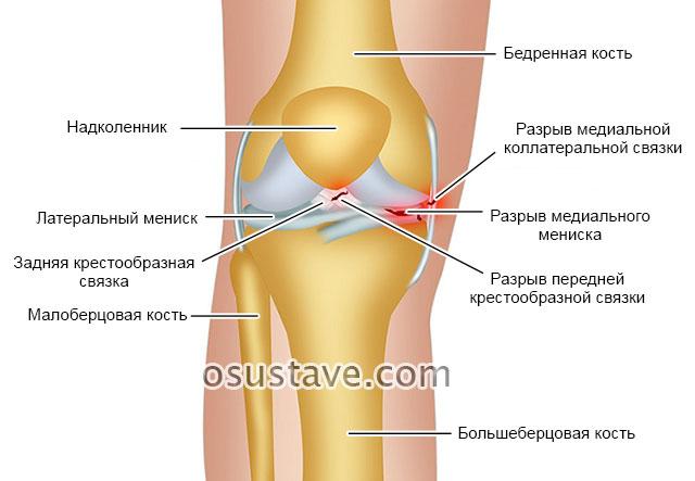 разрывы связок и менисков коленного сустава