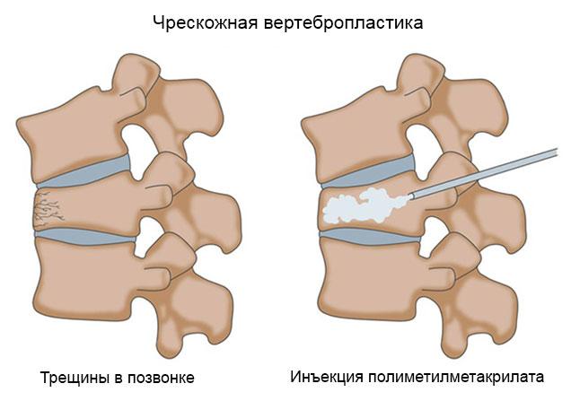 чрескожная вертебропластика