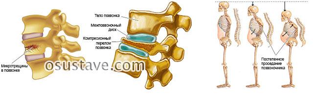 микротрещины, переломы позвонков, проседание позвоночного столба