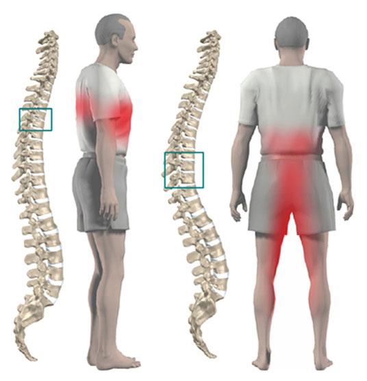 иррадиирующая боль при грудном остеохондрозе