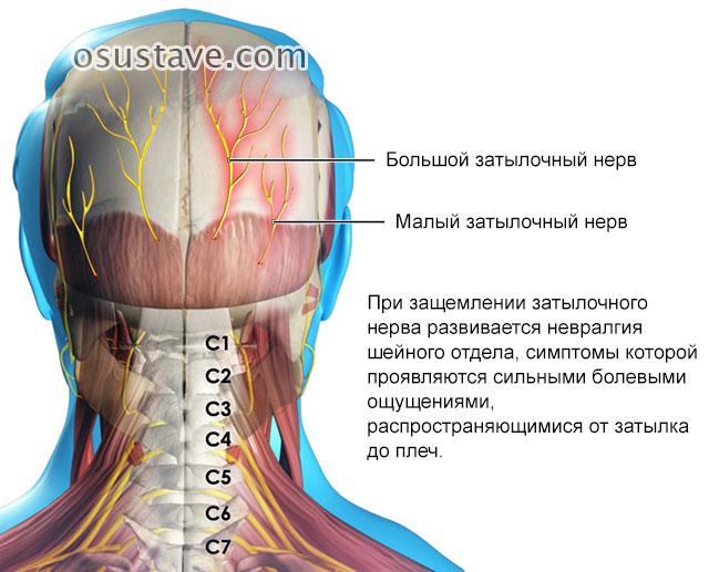 невралгия шейного отдела