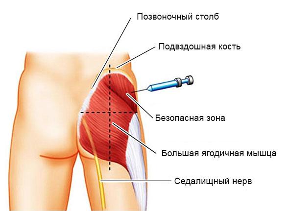 укол в ягодичную мышцу