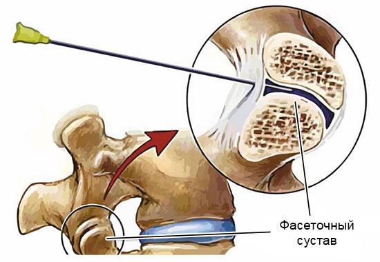 блокада фасеточных суставов
