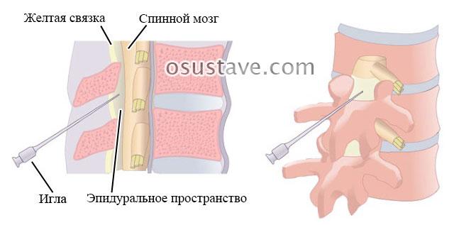 инъекция в эпидуральное пространство