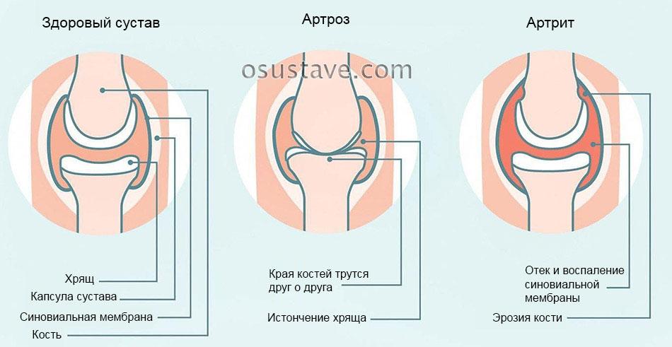 Артритни ръце