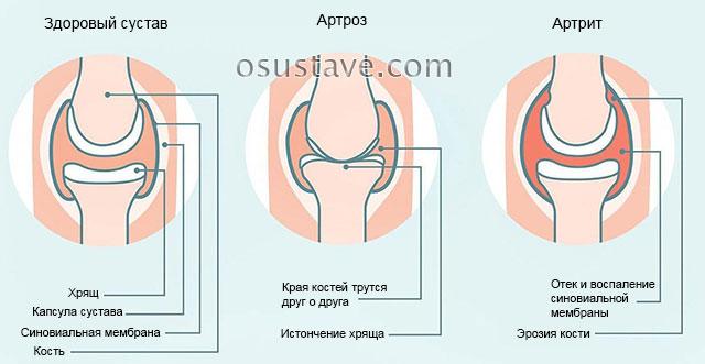 Артрит и артроз в чем различие