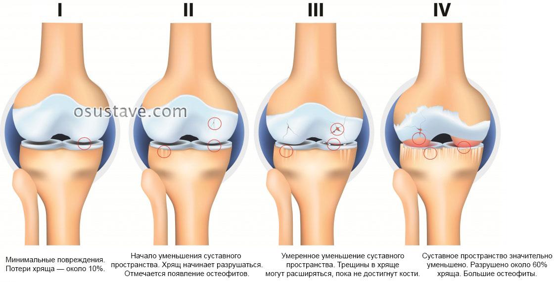 Артроз и артрит коленного сустава в чем разница фото