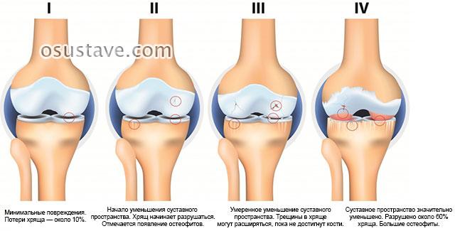 четыре стадии артроза