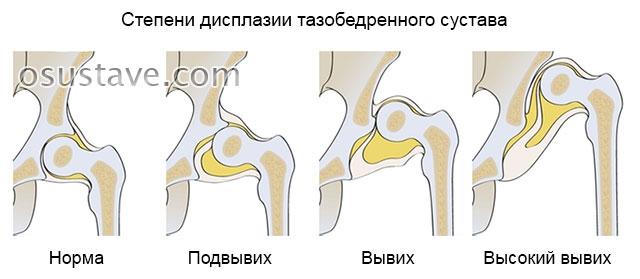 три степени дисплазии тазобедренного сустава