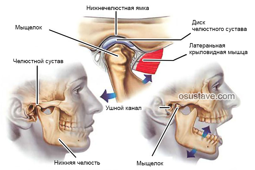 что воспаление сустава нижней челюсти симптомы нужно глянуть Какие
