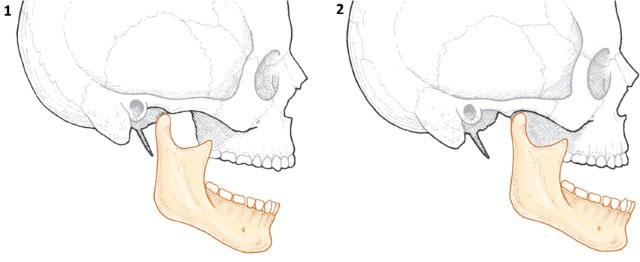 норма и вывих челюсти