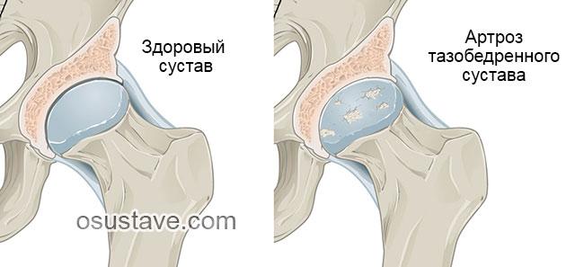 Как лечить коксартроз тазобедренного сустава 2 степени