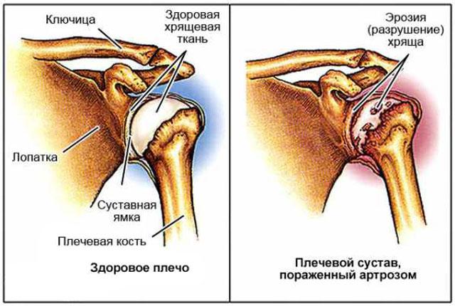Артроз плечевых суставов причины и лечение