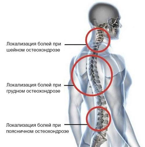 локализация боли при разных видах остеохондроза
