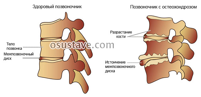 изменения позвоночника при остеохондрозе