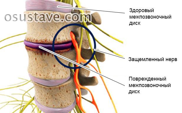 защемление нерва из-за повреждения межпозвоночного диска