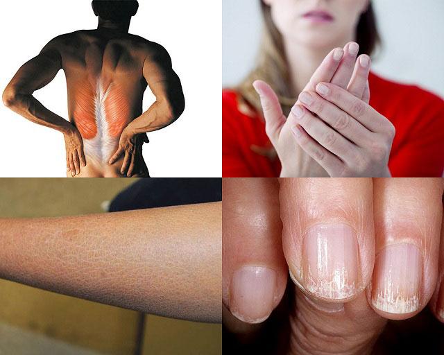 напряженность мышц, холодные конечности, сухость и шелушение кожи, ломкость ногтей