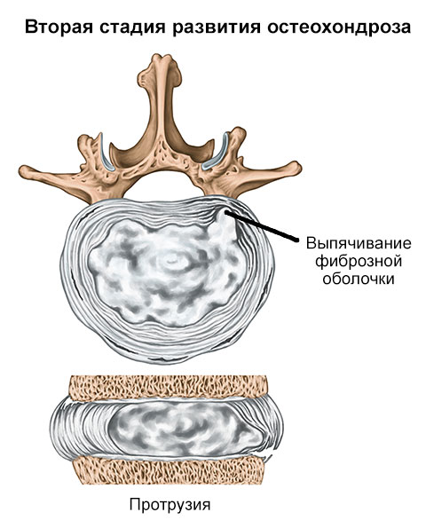 вторая стадия остеохондроза