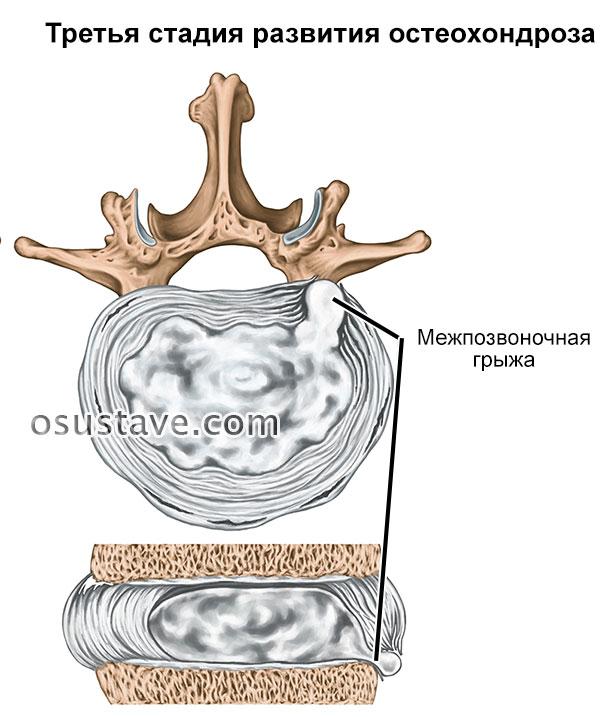 третья стадия остеохондроза