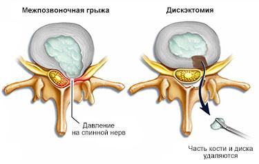 дискэктомия
