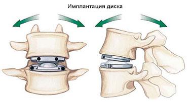 имплантация дисков