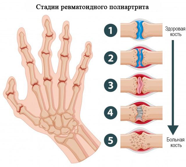 стадии развития ревматоидного полиартрита