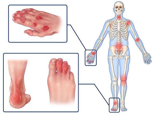 Болят руки ноги что это суставы thumbnail