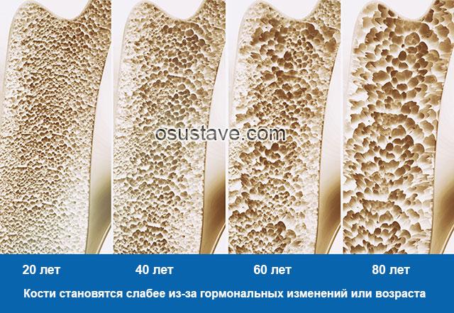 изменения костей с возрастом при остеопорозе