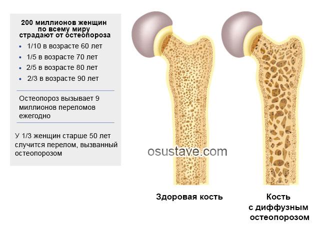 мировая статистика по остеопорозу