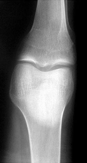 рентгеновский снимок кости, пораженной диффузным остеопорозом