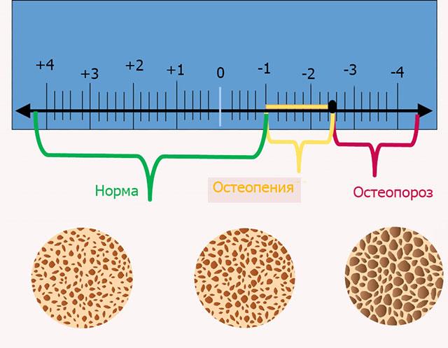 плотность костей