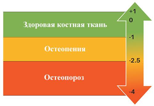 шкала значений при денситометрии
