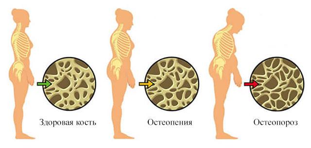здоровая кость, остеопения и остеопороз