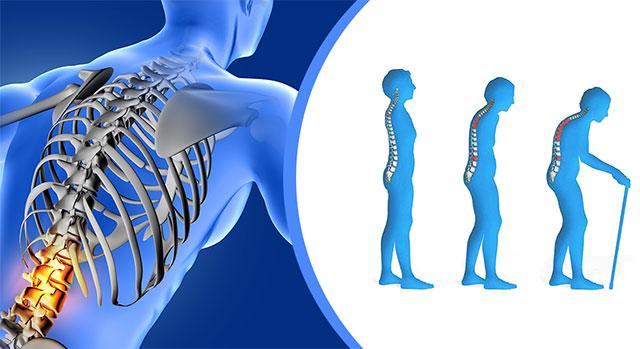 изменение осанки при остеопорозе