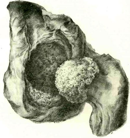 туберкулезный коксит
