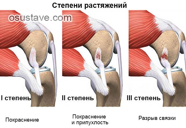 Болит колено с внутренней стороны после травмы thumbnail