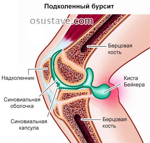 Болит сустав справа от колена thumbnail
