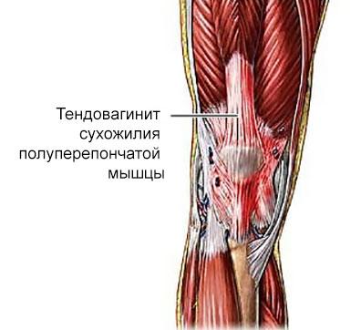 тендовагинит сухожилия полуперепончатой мышцы