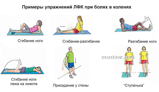 примеры упражнений ЛФК при боли в коленях